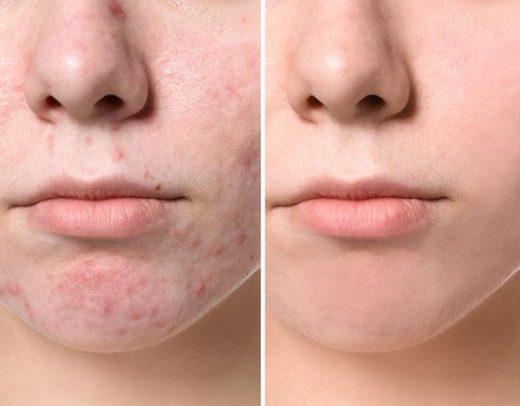Acne Solutions Facial Course