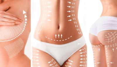 Online HIFU Body Rejuvenation Course
